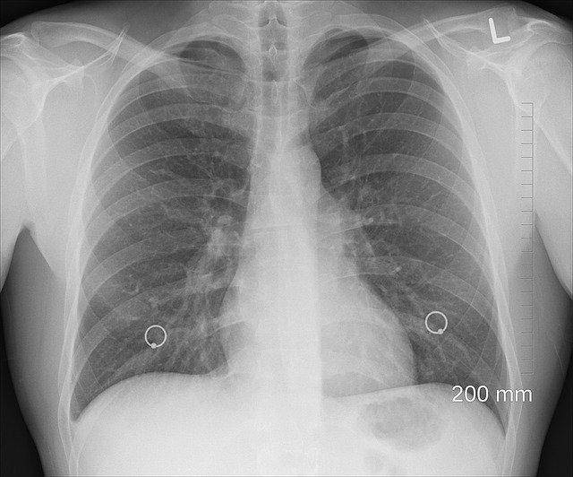Mai Poumon Toulouse